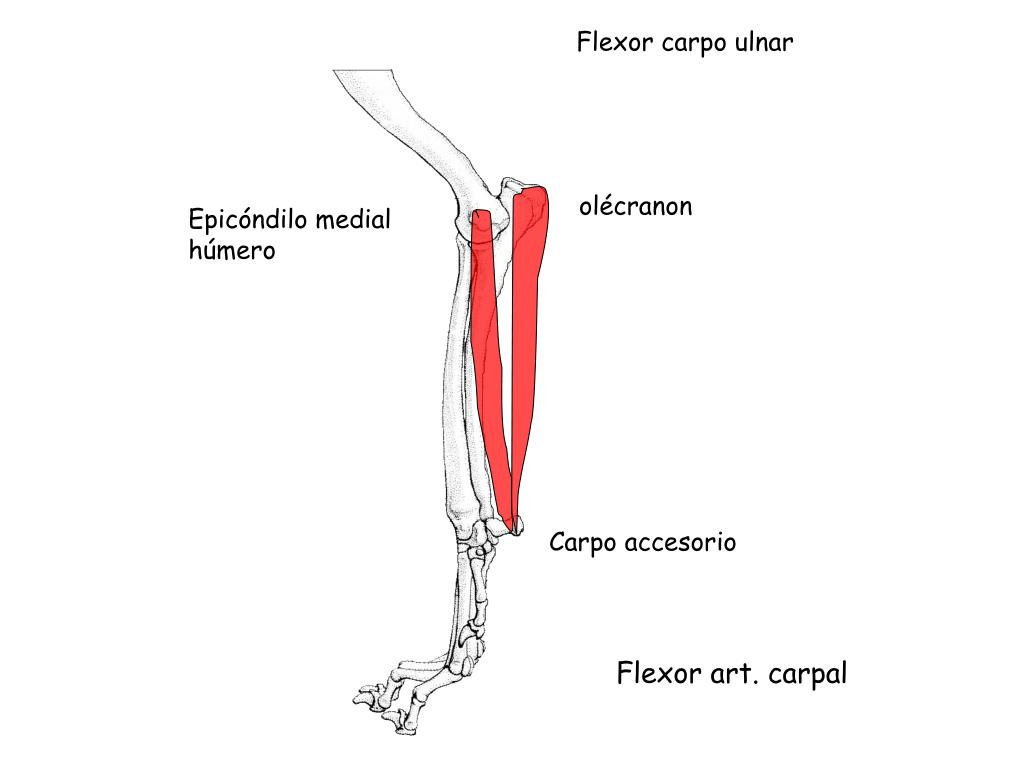 Flexor carpo ulnar