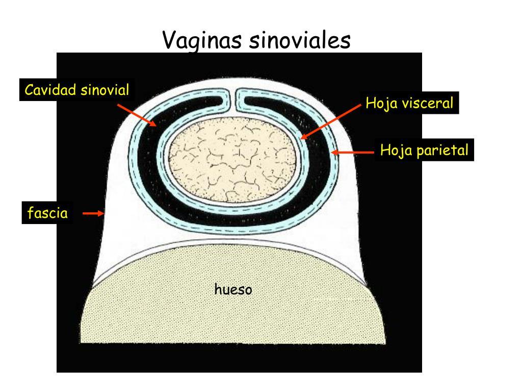 Vaginas sinoviales