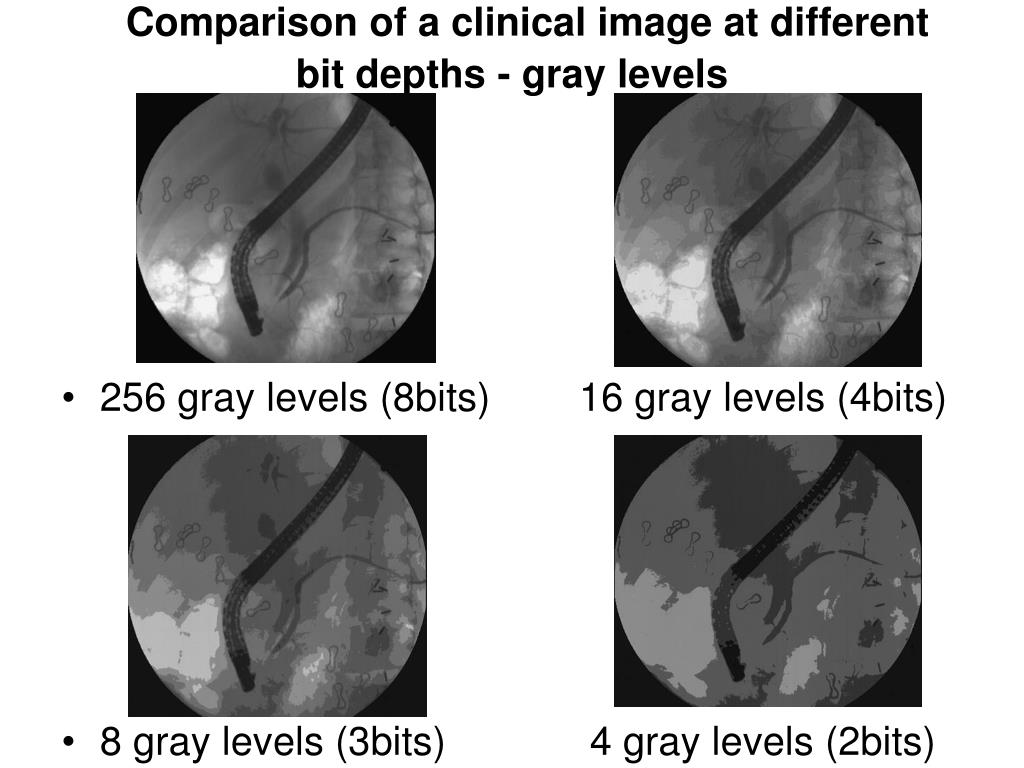 Comparison of a clinical image at different  bit depths - gray levels
