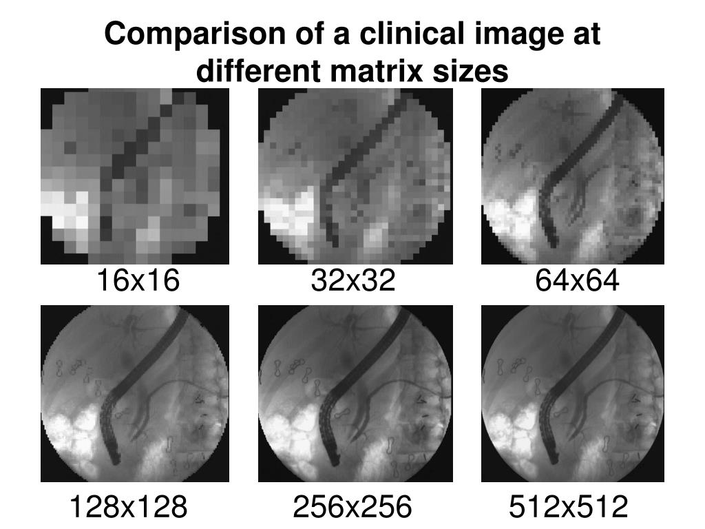 Comparison of a clinical image at different matrix sizes