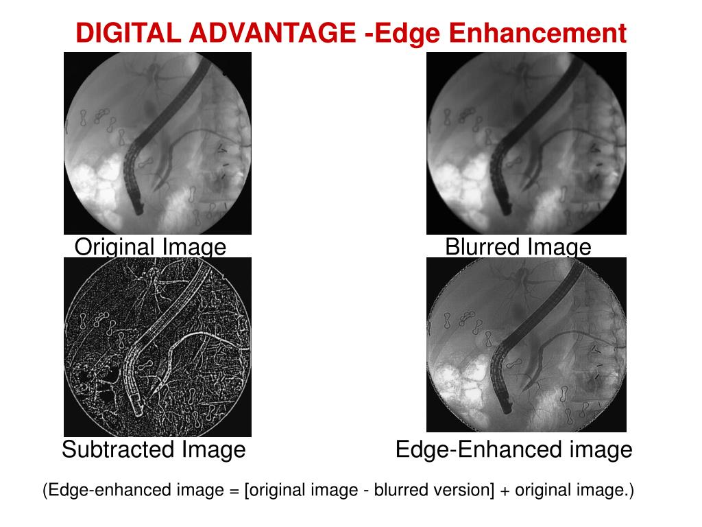 DIGITAL ADVANTAGE -Edge Enhancement