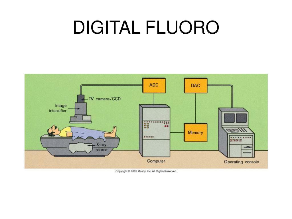 DIGITAL FLUORO