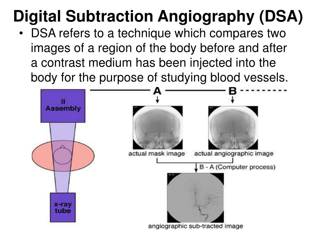 Digital Subtraction Angiography (DSA)