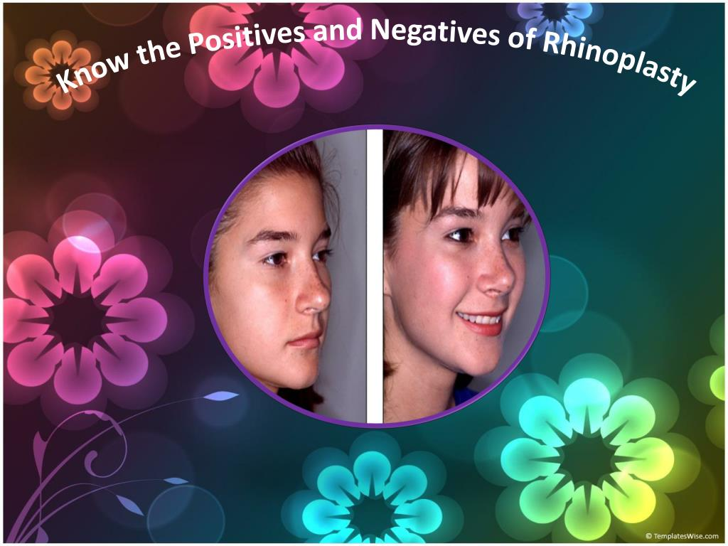 Know the Positives and Negatives of