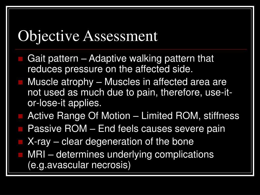 Objective Assessment