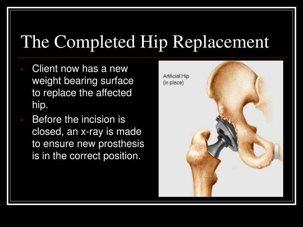 The Completed Hip Replacement