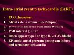 intra atrial reentry tachycardia iart