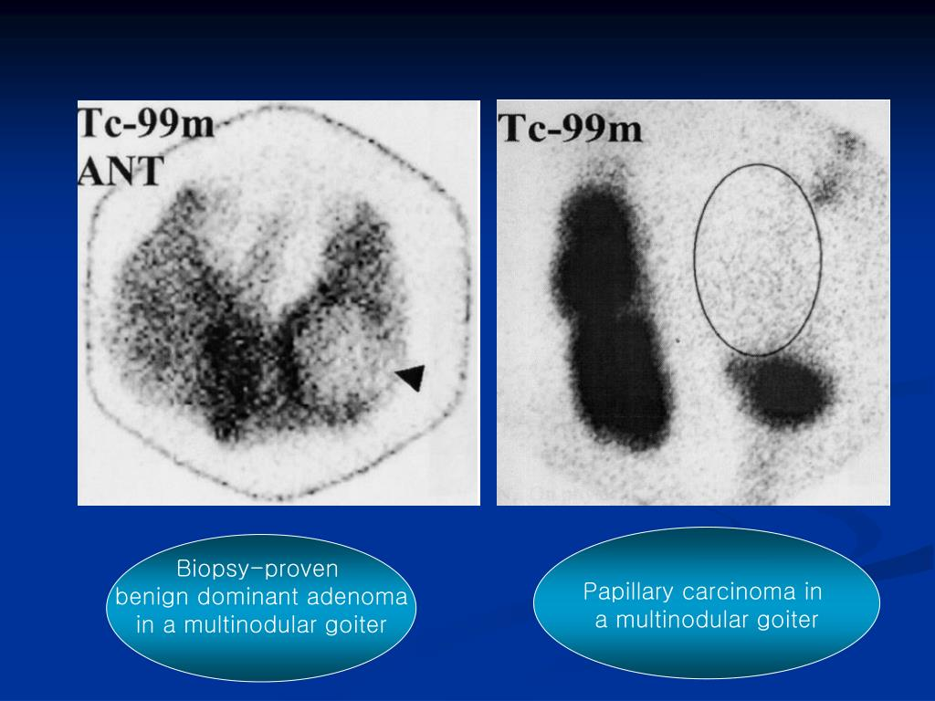 Papillary carcinoma in