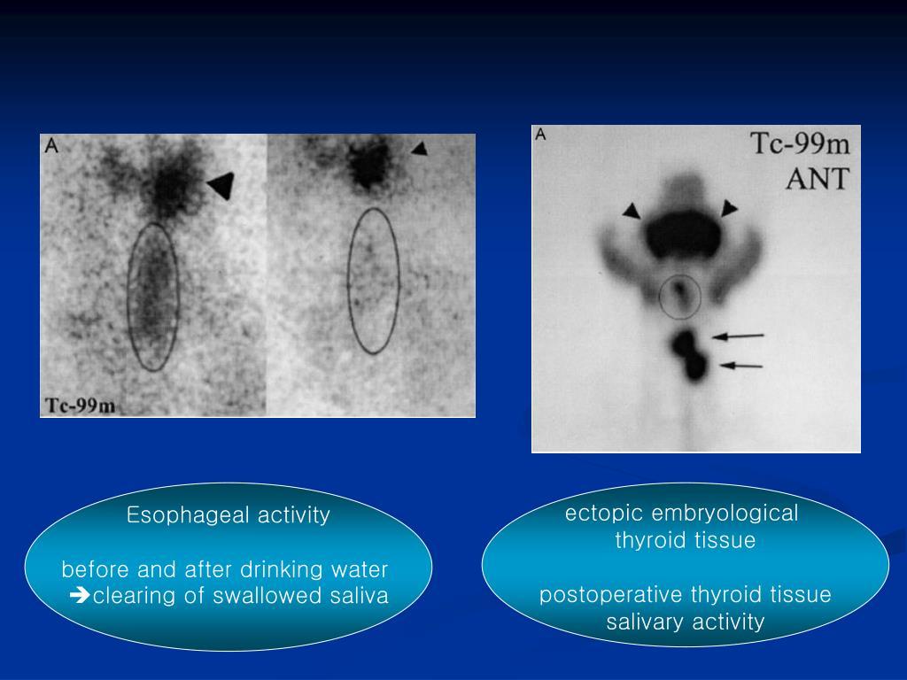 Esophageal activity