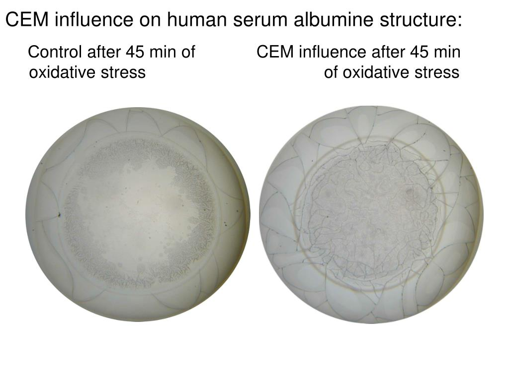 CEM influence on human serum albumine structure: