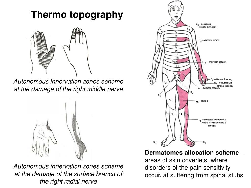 Thermo topography