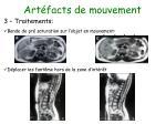 art facts de mouvement15