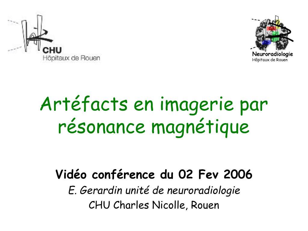 art facts en imagerie par r sonance magn tique