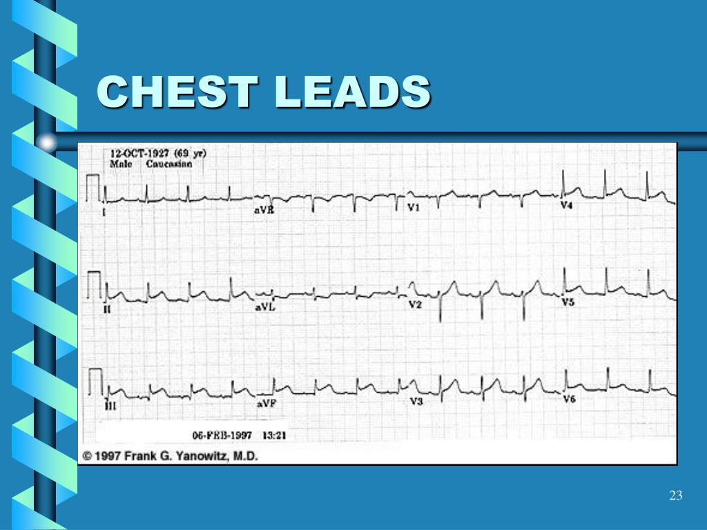 CHEST LEADS