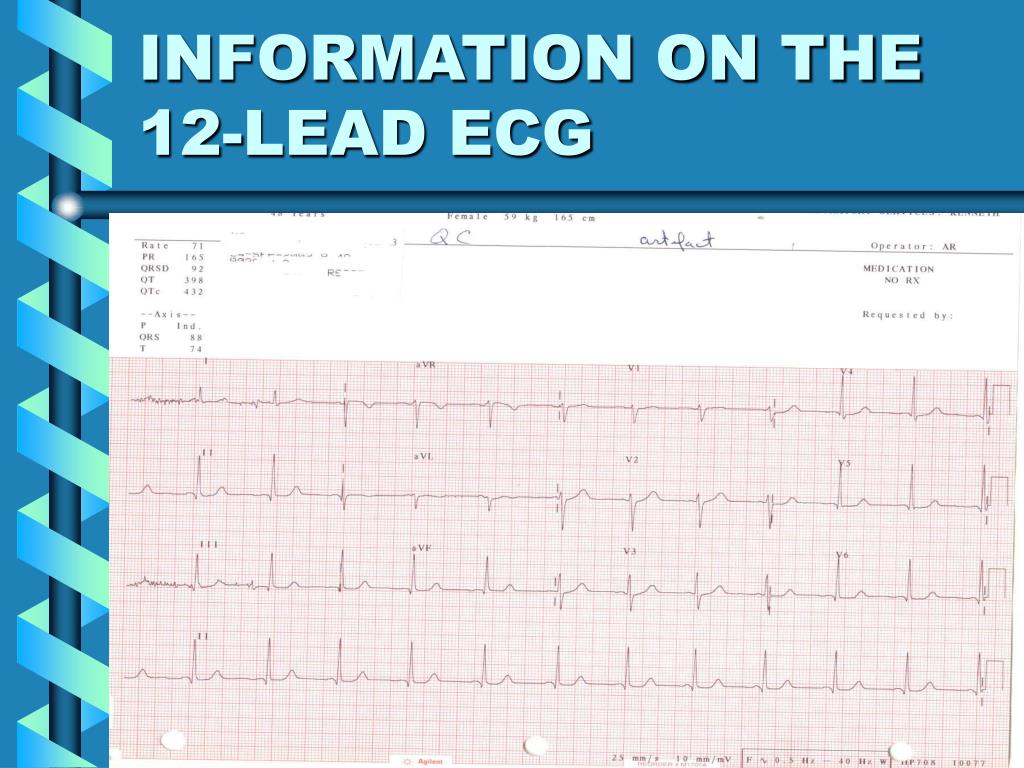 INFORMATION ON THE 12-LEAD ECG