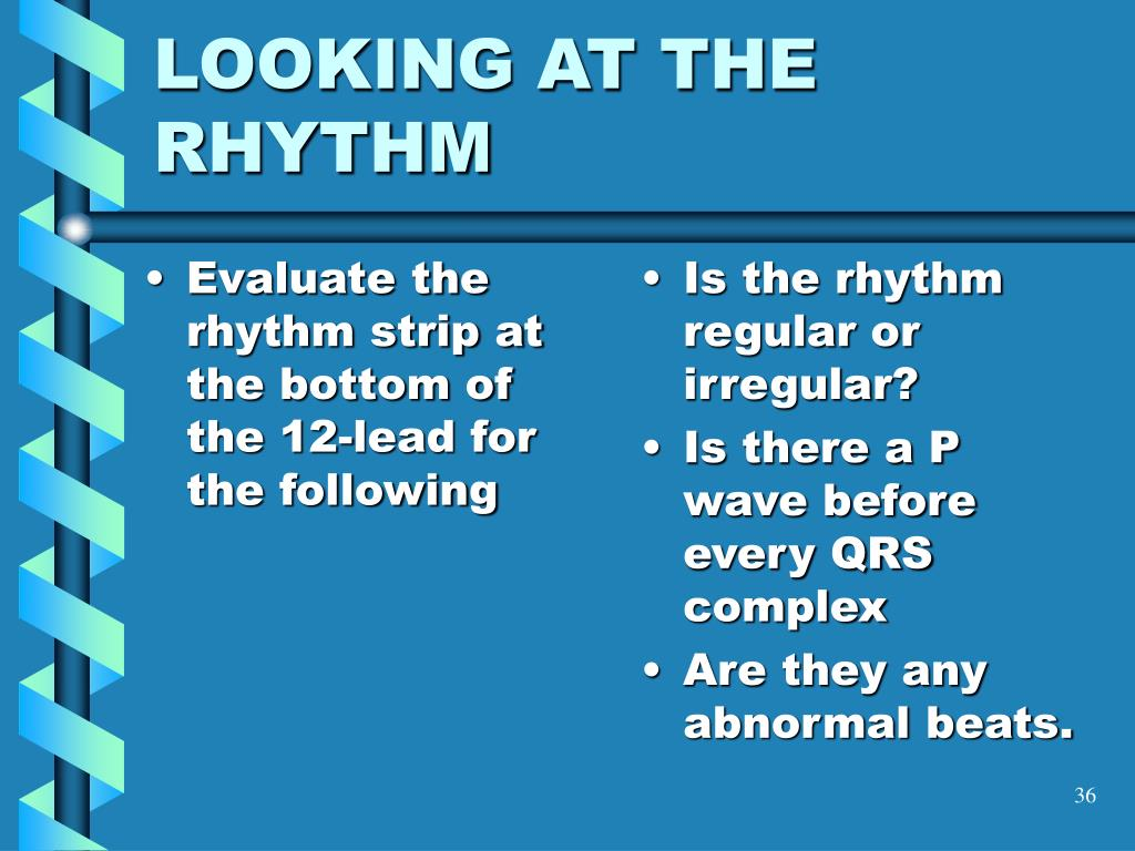 Evaluate the rhythm strip at the bottom of the 12-lead for the following