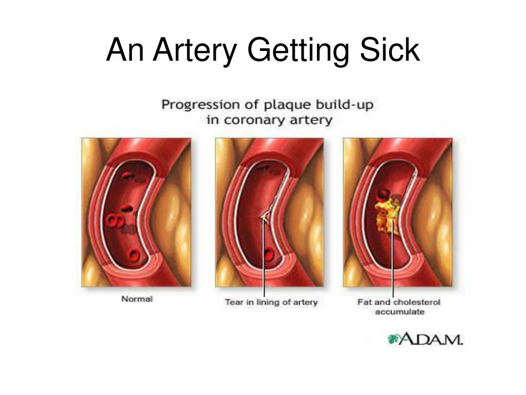 An Artery Getting Sick
