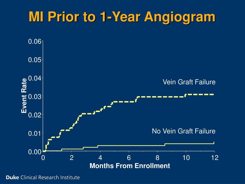 MI Prior to 1-Year Angiogram