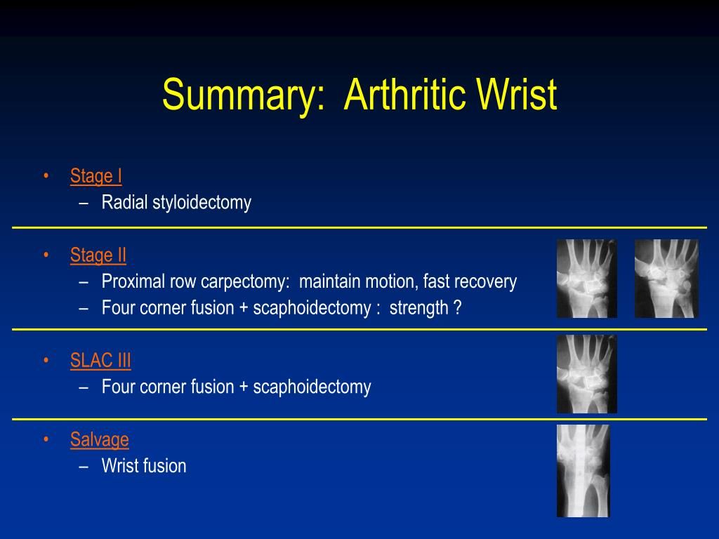 Summary:  Arthritic Wrist