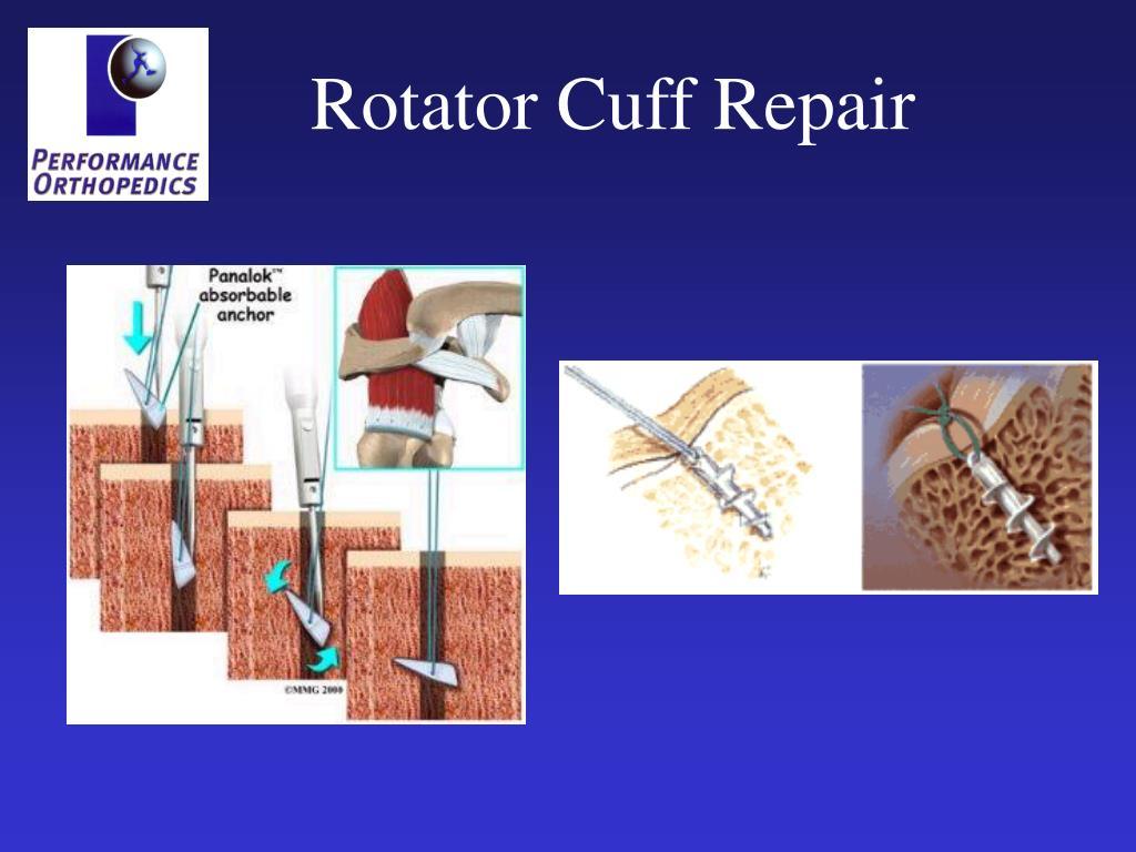 Rotator Cuff Repair