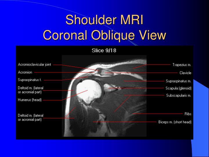 Mri anatomy of shoulder 7069633 - follow4more.info