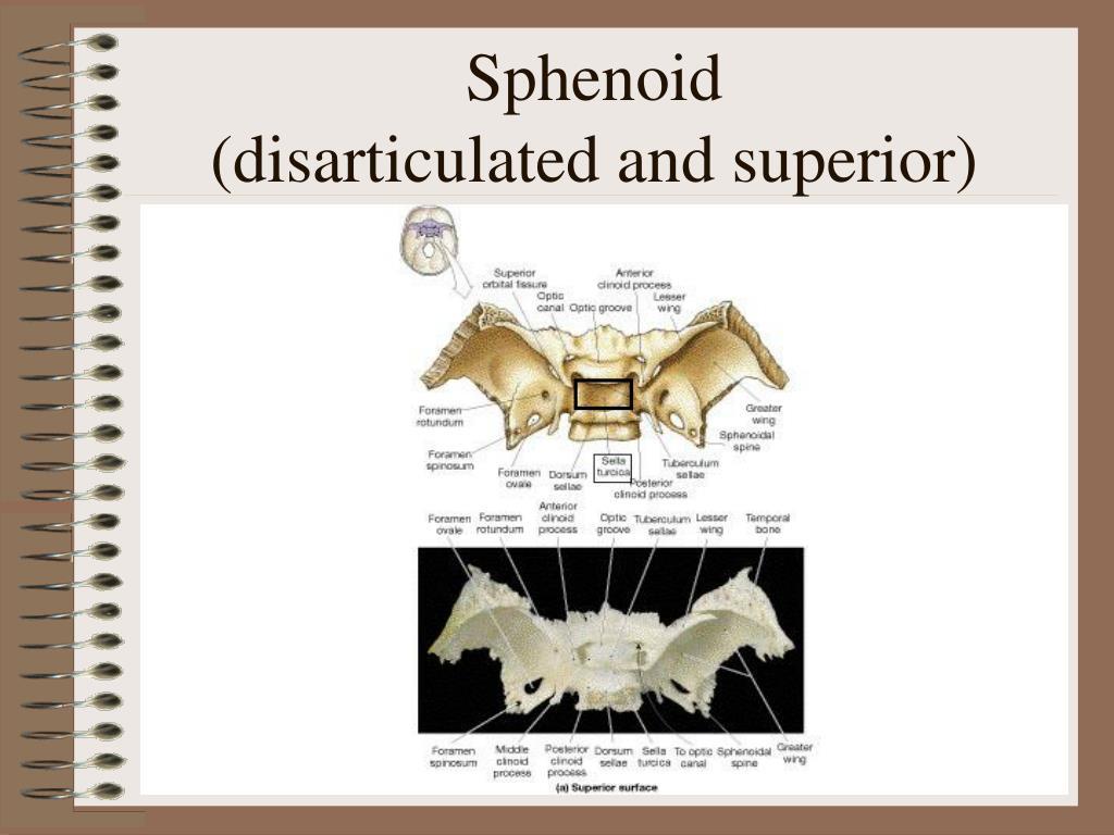Sphenoid