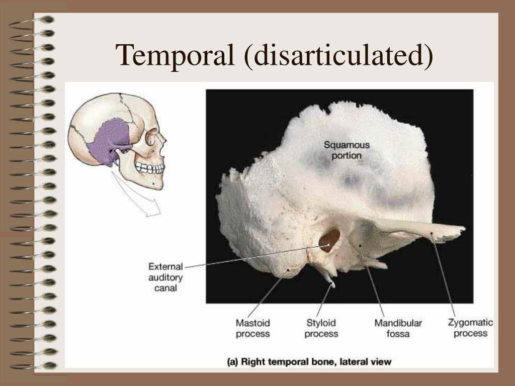 Temporal (disarticulated)