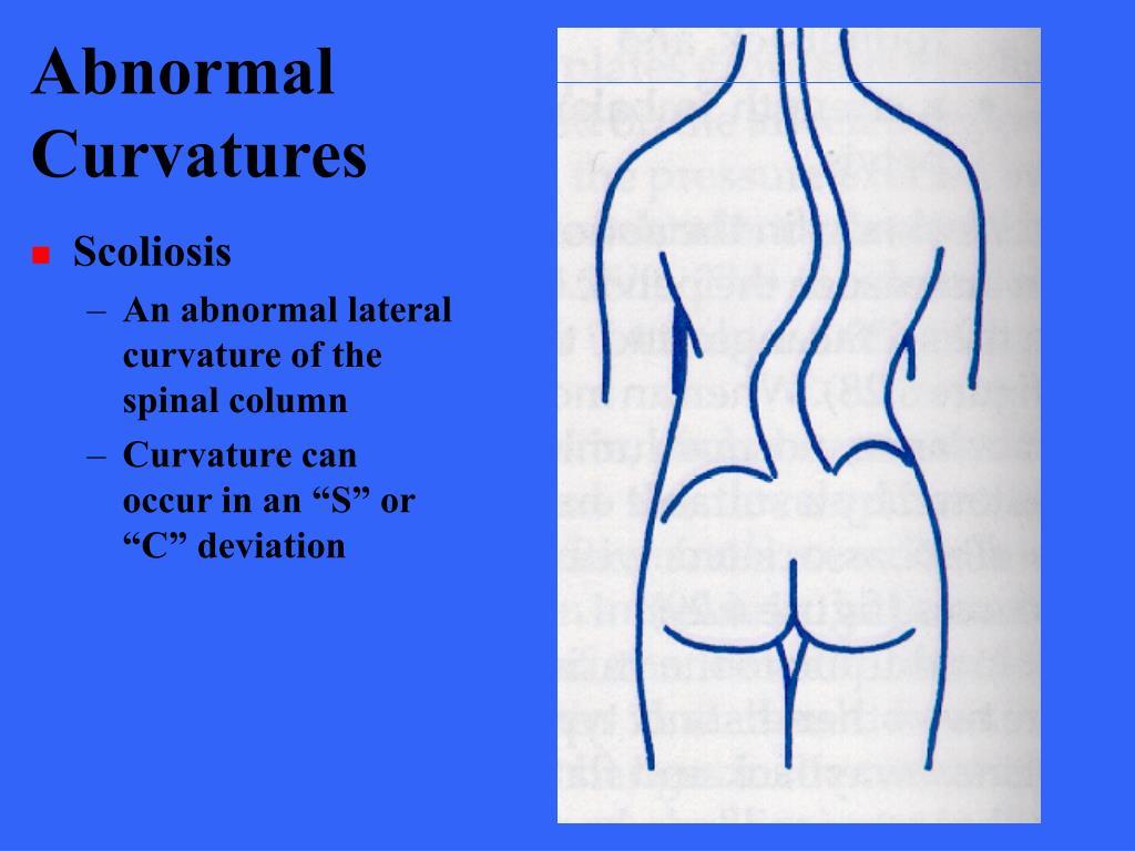 Abnormal Curvatures