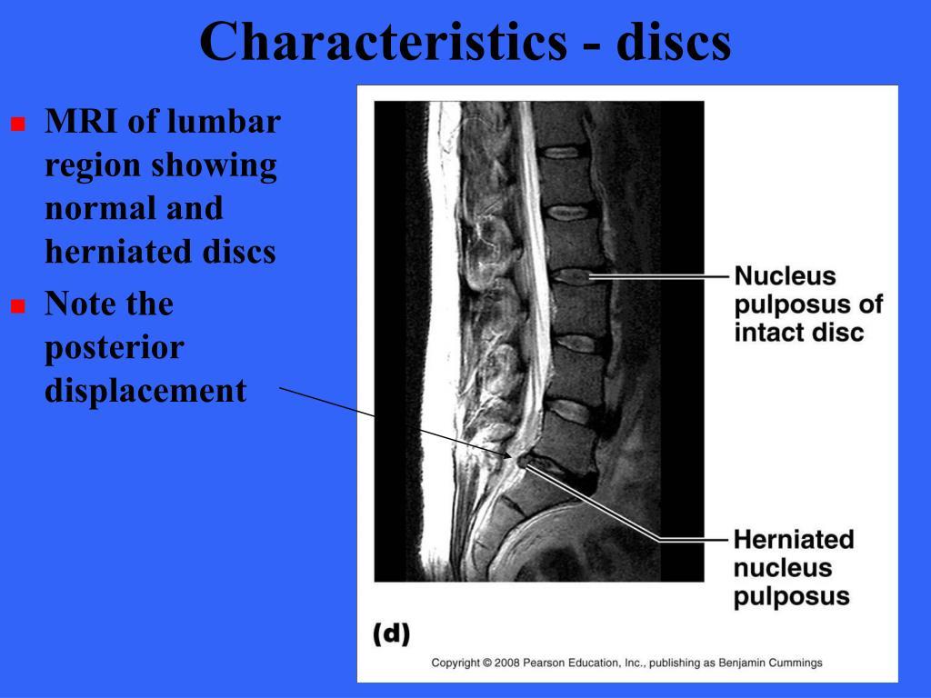 Characteristics - discs