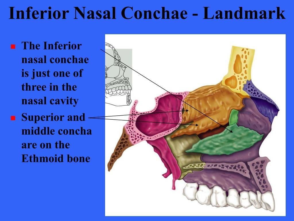 Inferior Nasal Conchae - Landmark