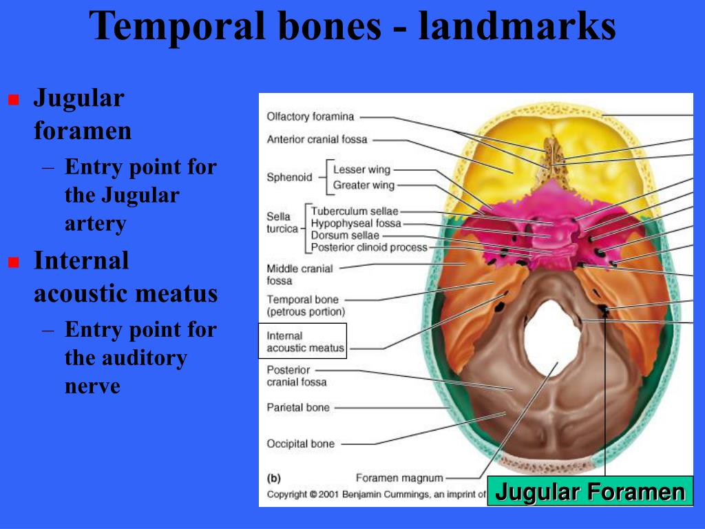 Temporal bones - landmarks