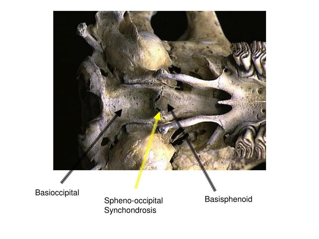 Basioccipital