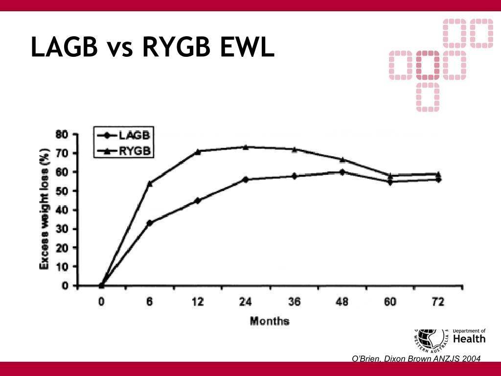 LAGB vs RYGB EWL