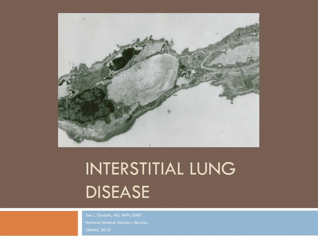 Image Result For What Is Interstitial Lung Disease