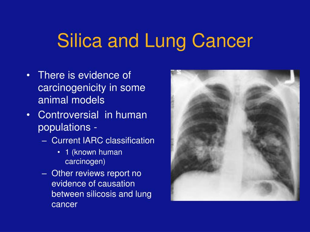 Role of silicosis in silica associated lung cancer
