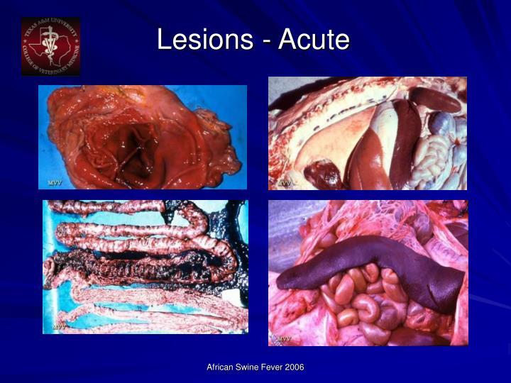 Lesions - Acute