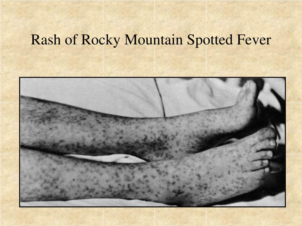 Rash of Rocky Mountain Spotted Fever