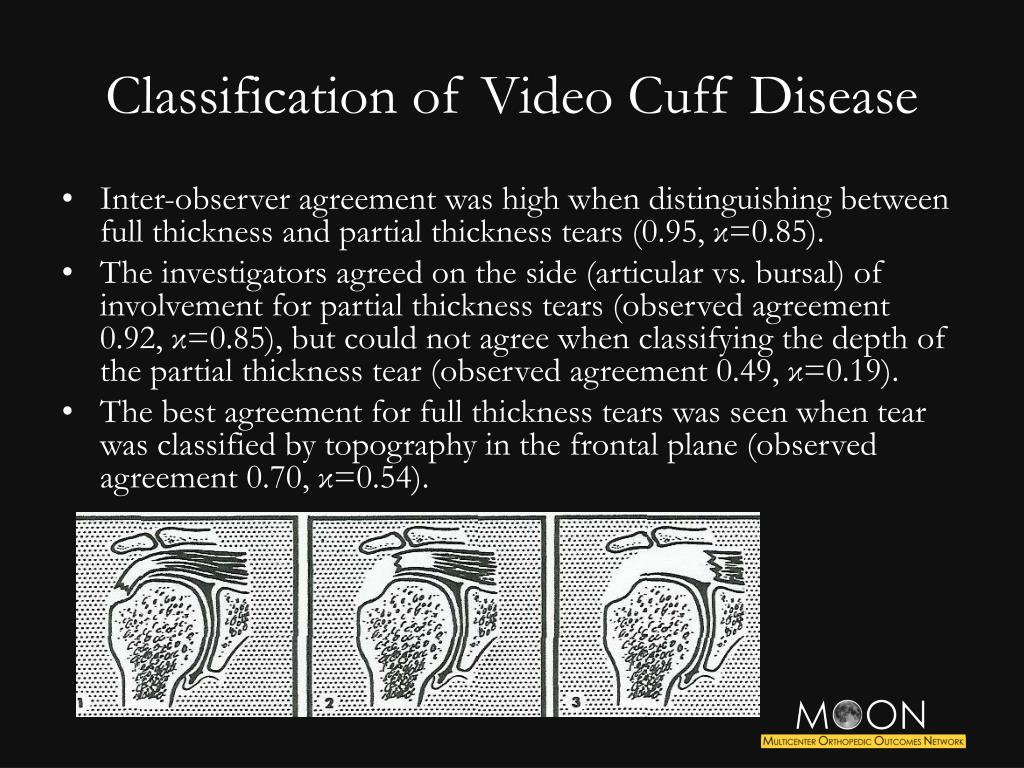Classification of Video Cuff Disease