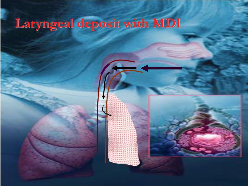 Laryngeal deposit with MDI