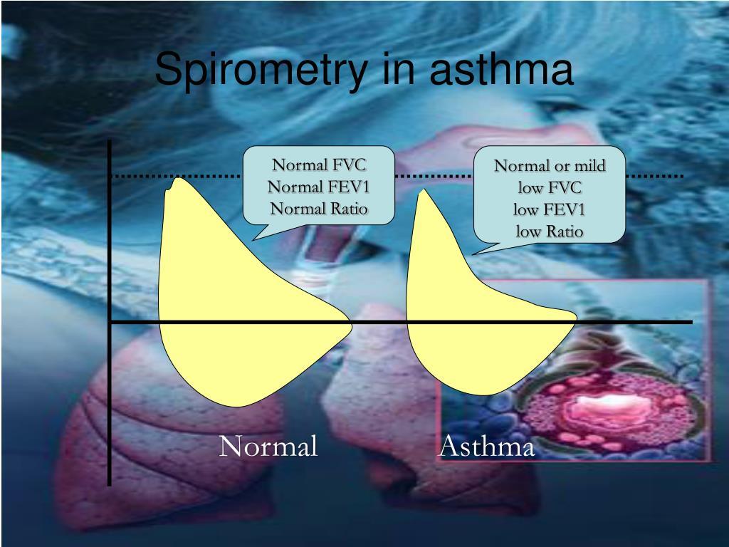 Spirometry in asthma