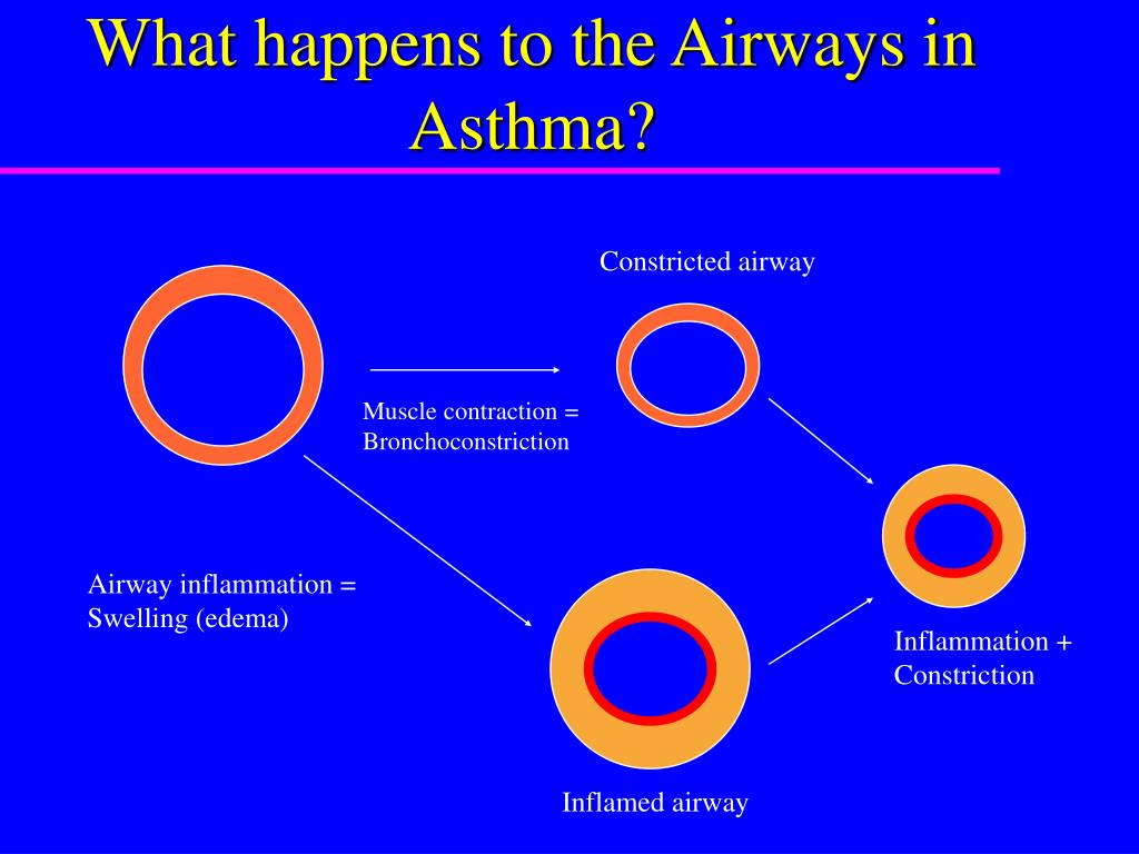 Constricted airway
