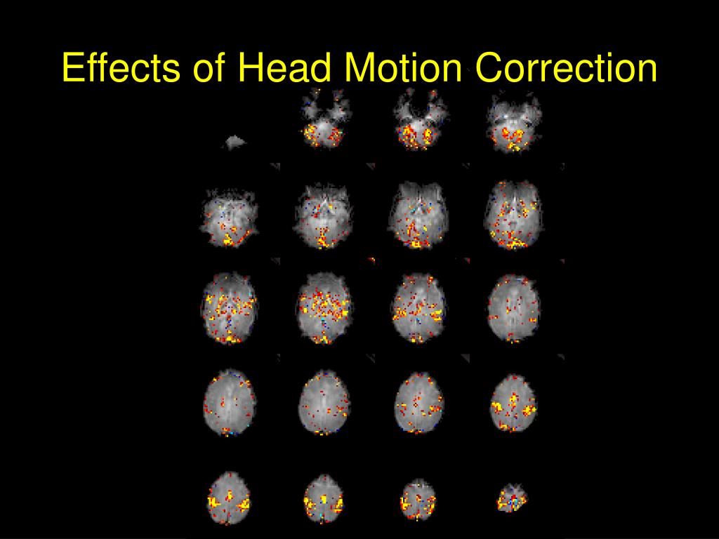 Effects of Head Motion Correction