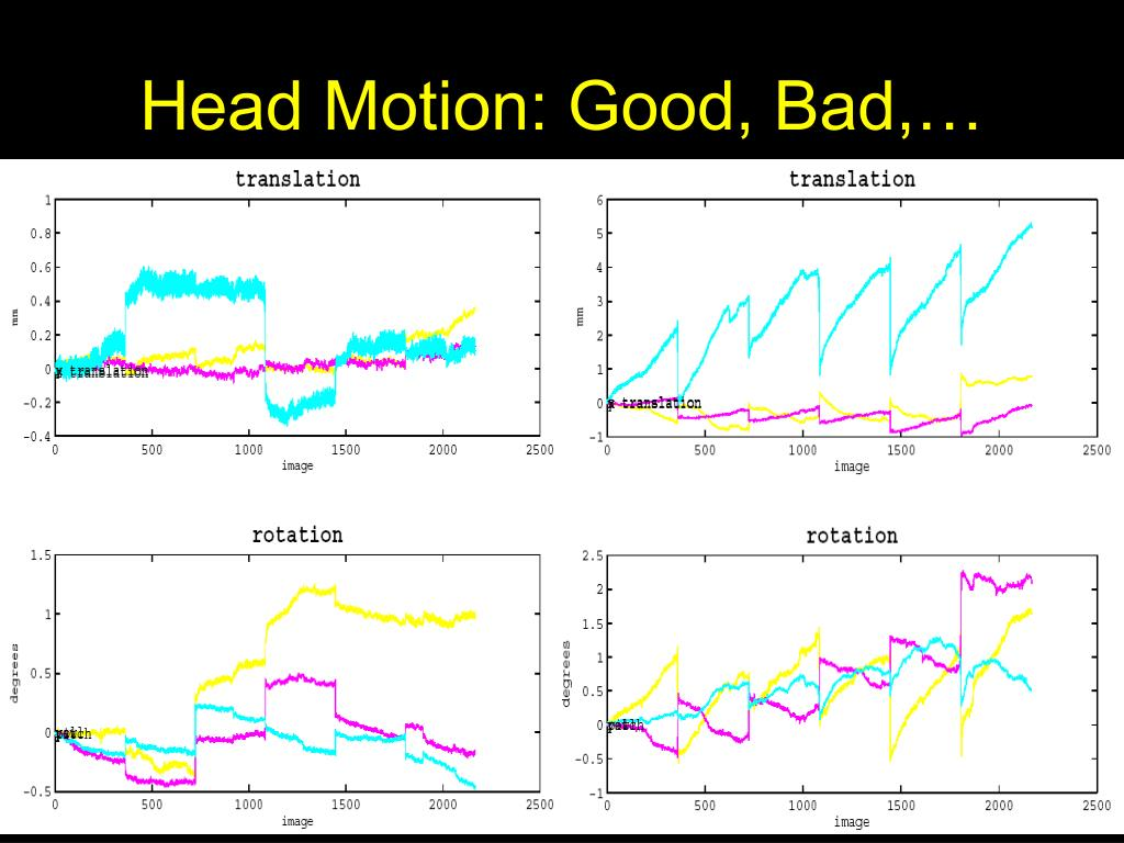 Head Motion: Good, Bad,…