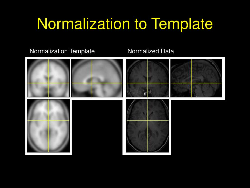 Normalization to Template