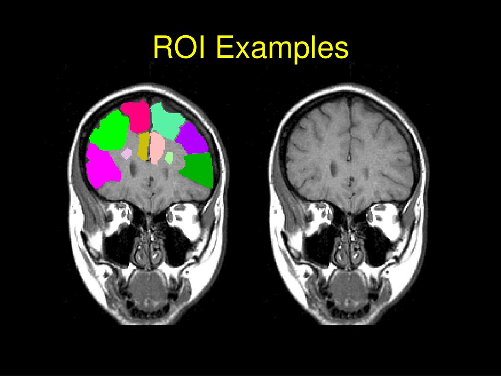ROI Examples