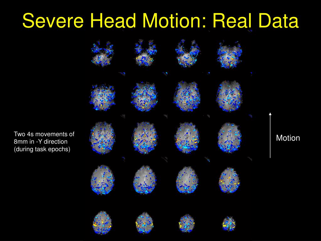 Severe Head Motion: Real Data