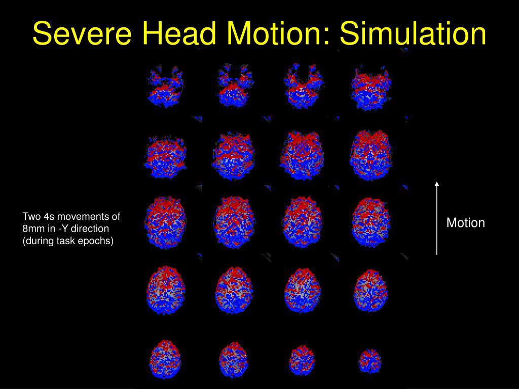 Severe Head Motion: Simulation
