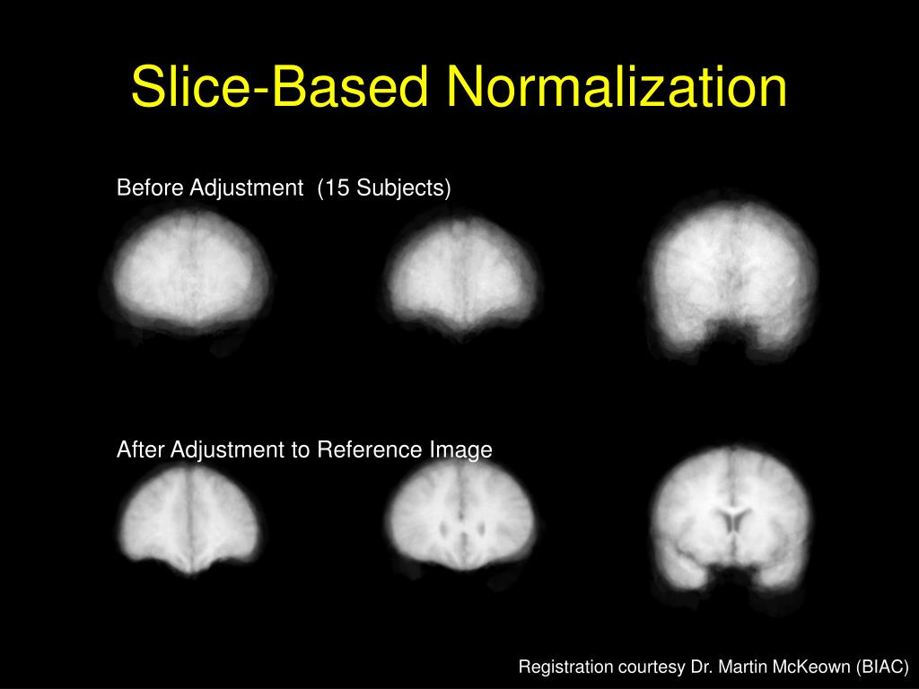 Slice-Based Normalization