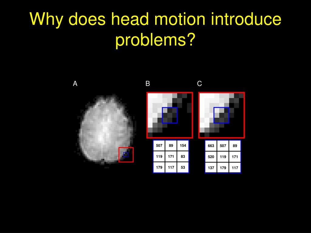 Why does head motion introduce problems?