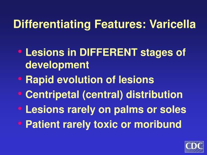 Differentiating Features: Varicella